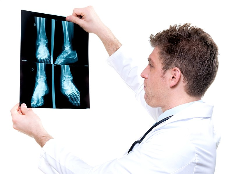 xray-from-ankle.jpg